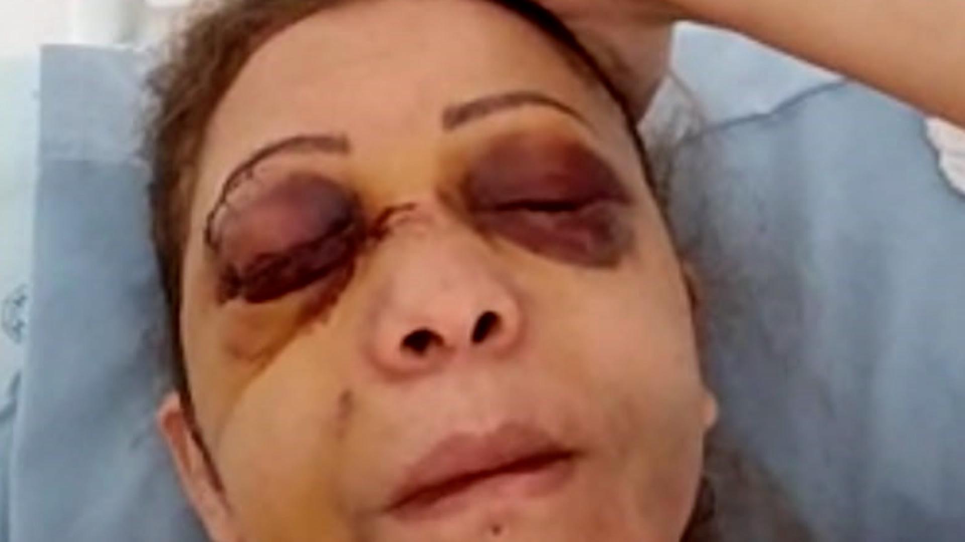 Costureira perde um olho após ser espancada